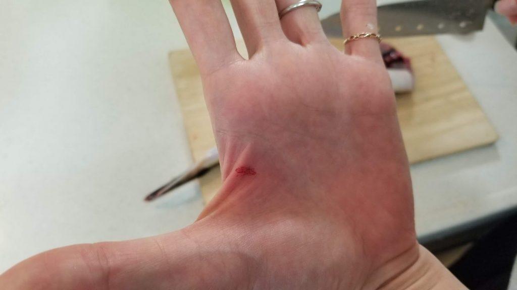 マゴチでケガをした手の写真